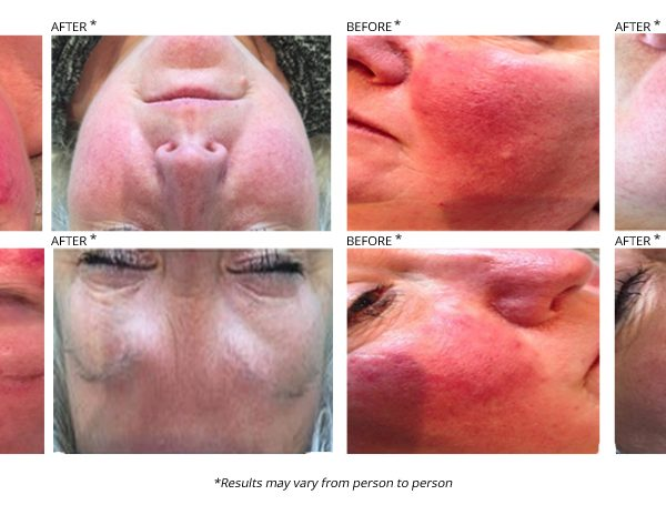 Laser acne treatment before and after photos