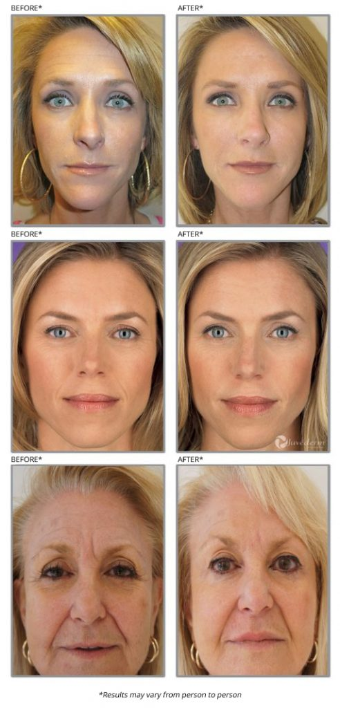 anti wrinkle treatment before and after photos