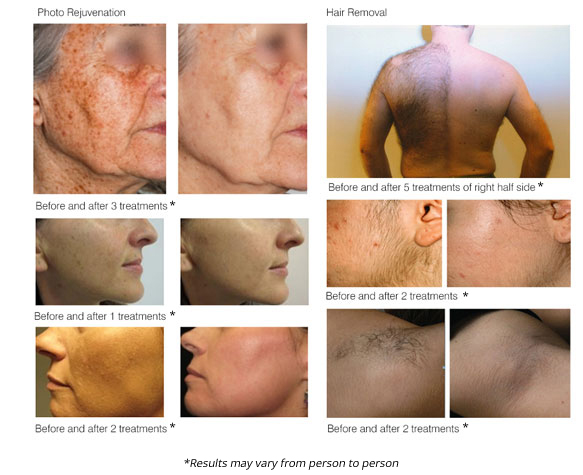 laser skin rejuvenation before and after photos