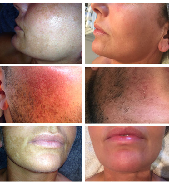 Scarring treatments before and after pictures