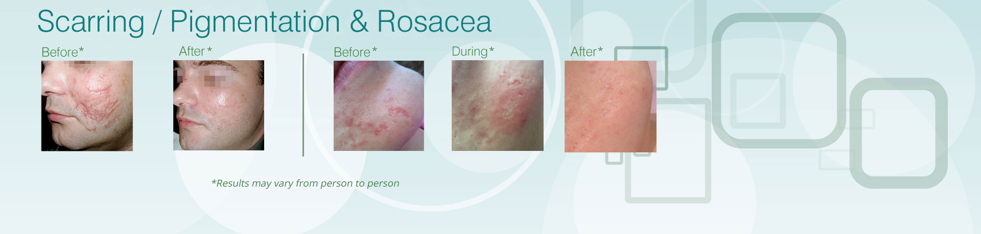 scarring pigmentation and rosacea treatment bolton