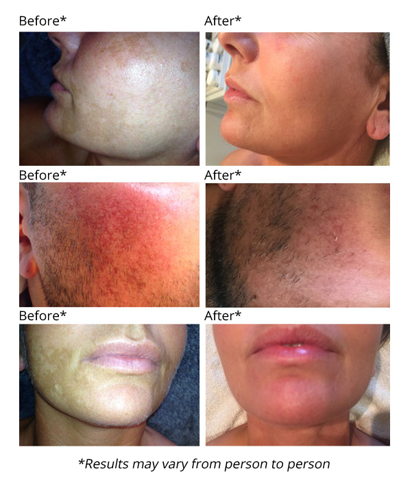 scarring pigmentation and rosacea treatment