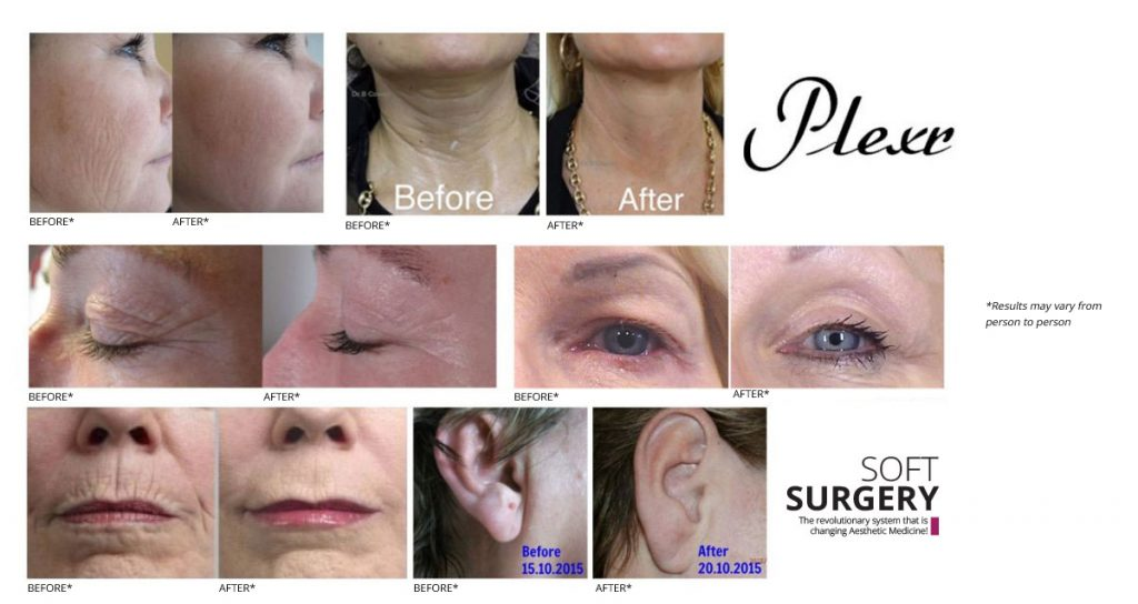 Plexr soft surgery before and after photos