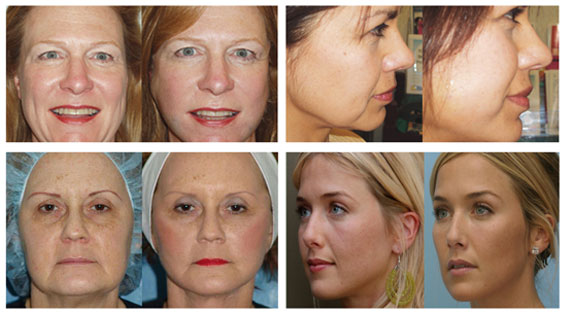 Thread lift before and after | Evolve Private Aesthetics Clinic Bolton