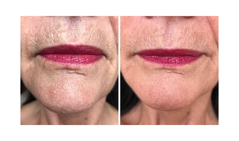 Alumier MD Glow Peel Transformation from Evolve Skin Clinic