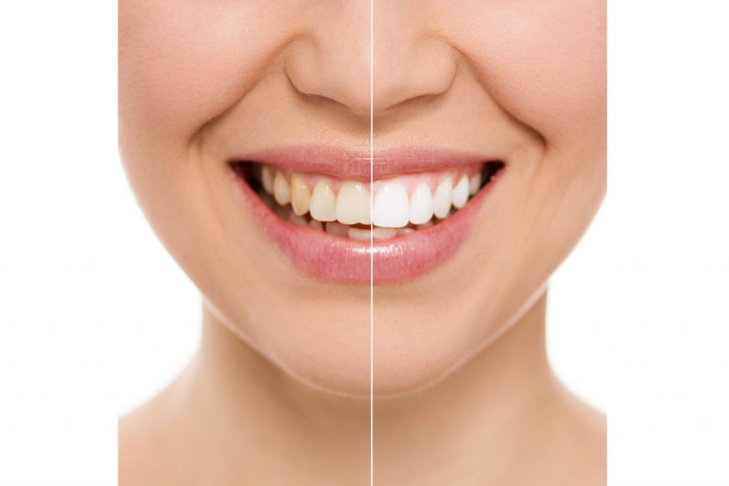Teeth Whitening Evolve Private Aesthetics Clinic Bolton