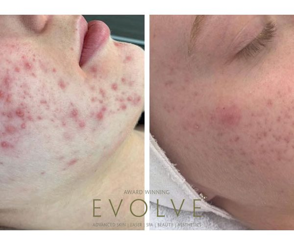 DMK-acne-before-and-after
