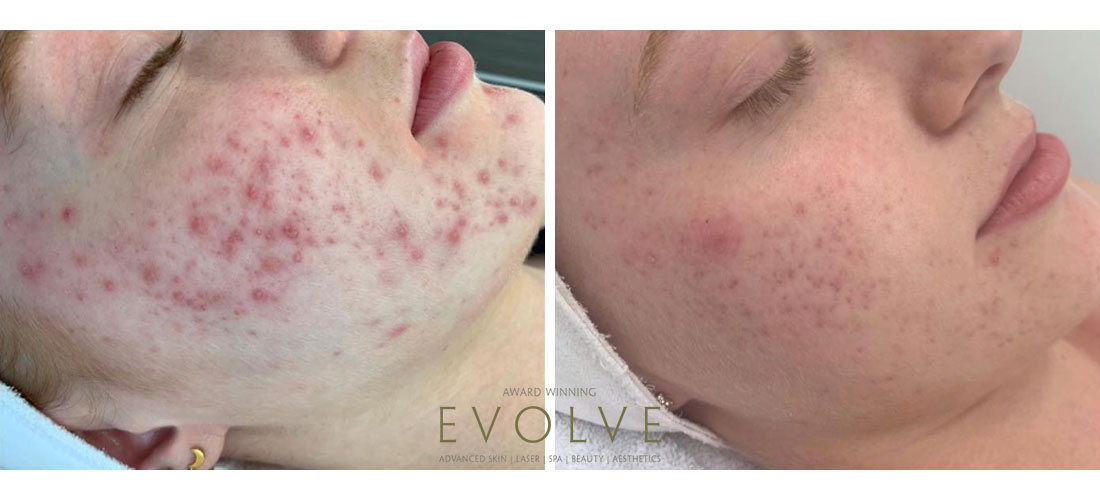 Acne Treatments Clear Skin Results At Evolve Evolve Private Aesthetics Clinic Bolton