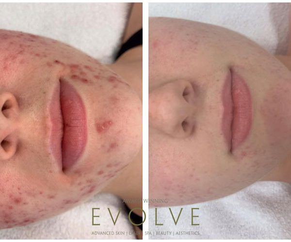 DMK-acne-treatment-results