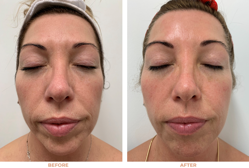 Hifu face lift before and after