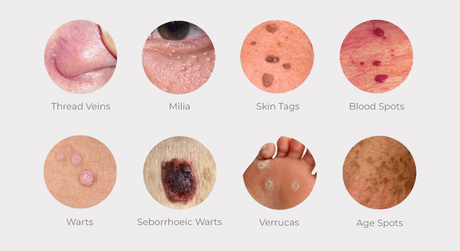 STEREX Skin Imperfection Removals