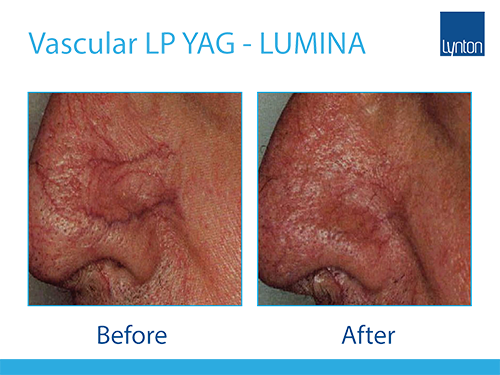 Lumina Laser Vascular Treatment Before and After