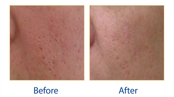 Lynton Lumina Acne Scarring before and after results