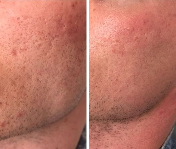 dermapen before and after results